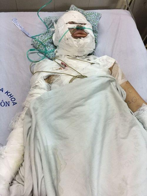 Hoàn cảnh éo le của người phụ nữ bị đổ xăng thiêu ở Hà Nội - Ảnh 1