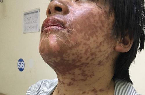 Cô gái bị biến dạng mặt sau khi tự ý mua thuốc chữa đau đầu - Ảnh 1