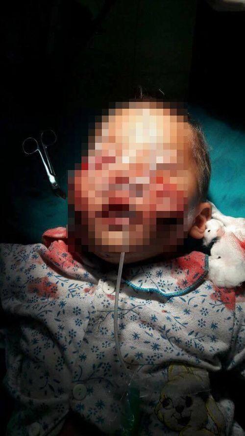 Đau lòng cháu bé bị chó cắn nát mặt ở Lào Cai - Ảnh 1