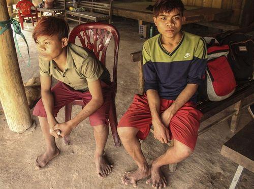 Quảng Bình: Kỳ lạ gia đình nhiều người có 26 ngón tay, chân - Ảnh 1