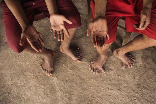 Quảng Bình: Kỳ lạ gia đình nhiều người có 26 ngón tay, chân - Ảnh 2