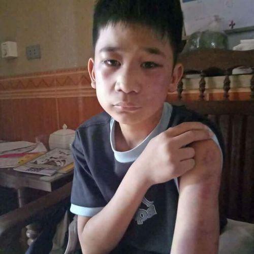 Hà Nội: Cậu bé 14 tuổi nghi bị bố và mẹ kế dùng gậy gỗ đánh bầm tím người - Ảnh 1