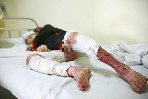 Bé trai 7 tuổi bị cha dùng rơm đốt vì tự ý ăn mì tôm của bà - Ảnh 4