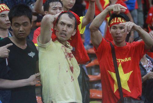 CĐV Việt Nam bị fan cuồng Malaysia đánh chảy máu đầu - Ảnh 1