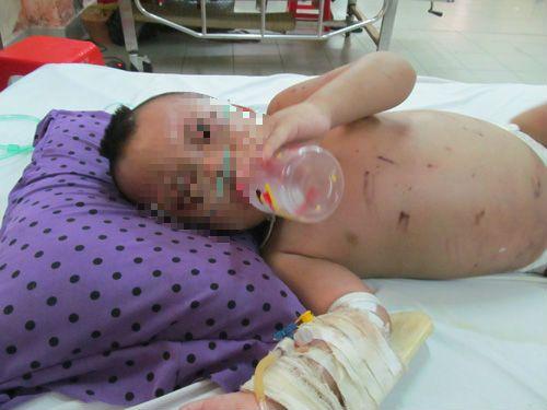 Bà ngoại đánh dã man cháu 2 tuổi vì làm vỡ chai dầu gió - Ảnh 1