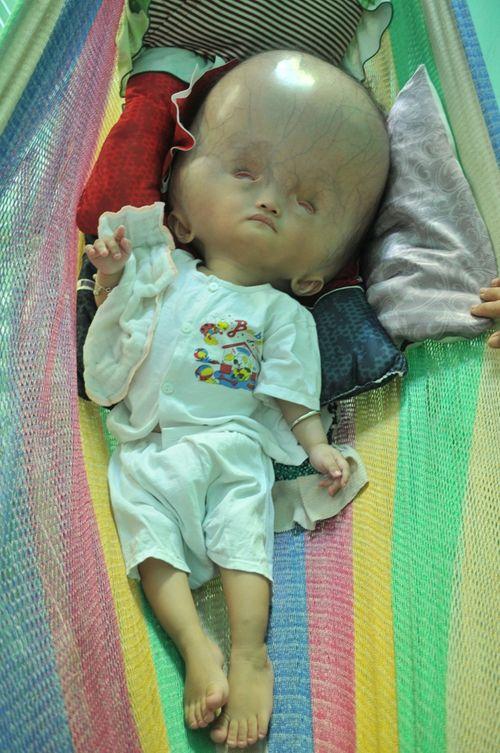 Khốn khổ cuộc sống của bé 14 tháng tuổi có đầu to gấp bốn lần cơ thể - Ảnh 1