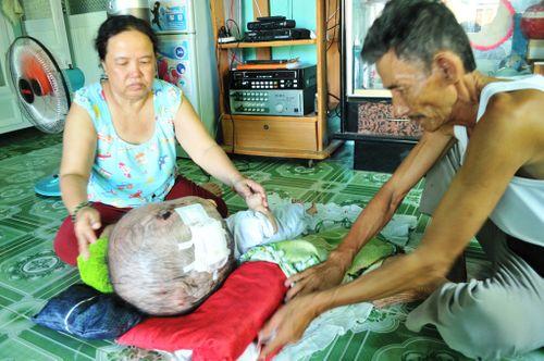 Khốn khổ cuộc sống của bé 14 tháng tuổi có đầu to gấp bốn lần cơ thể - Ảnh 2