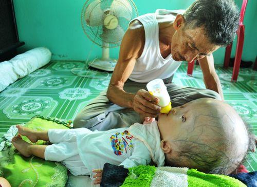 Khốn khổ cuộc sống của bé 14 tháng tuổi có đầu to gấp bốn lần cơ thể - Ảnh 3