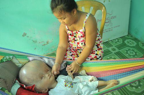 Khốn khổ cuộc sống của bé 14 tháng tuổi có đầu to gấp bốn lần cơ thể - Ảnh 4