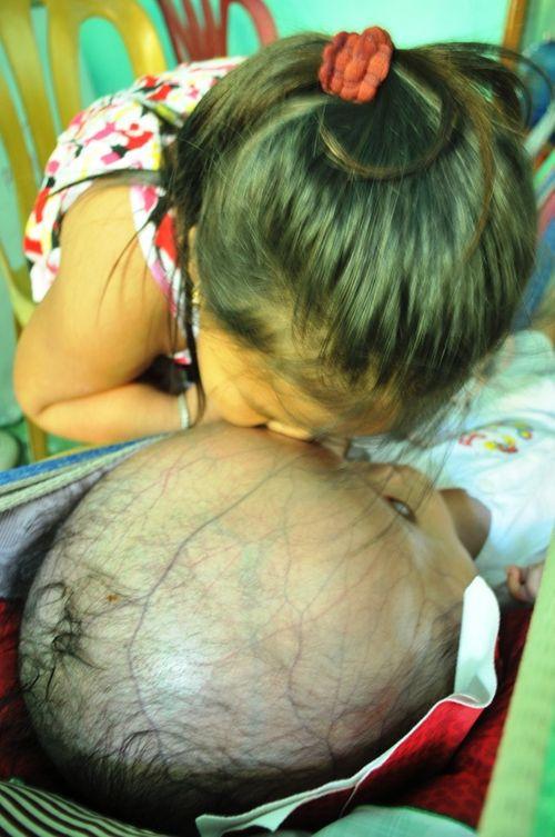 Khốn khổ cuộc sống của bé 14 tháng tuổi có đầu to gấp bốn lần cơ thể - Ảnh 5