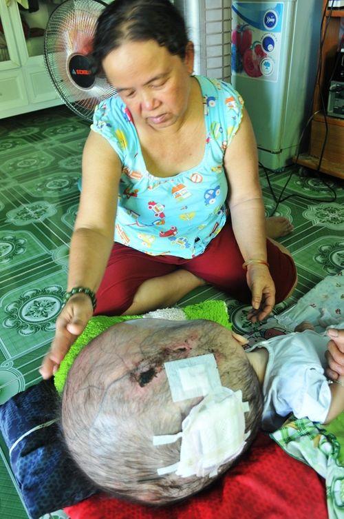 Khốn khổ cuộc sống của bé 14 tháng tuổi có đầu to gấp bốn lần cơ thể - Ảnh 6