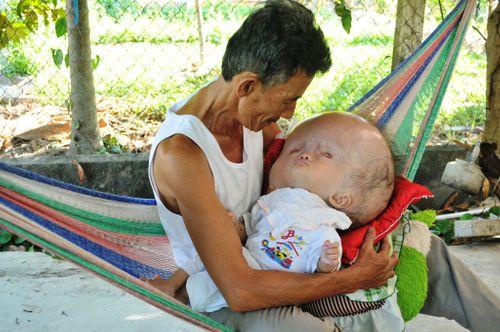Khốn khổ cuộc sống của bé 14 tháng tuổi có đầu to gấp bốn lần cơ thể - Ảnh 7