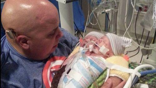 """""""Em bé"""" hai đầu tử vong 48 giờ sau khi chào đời - Ảnh 1"""