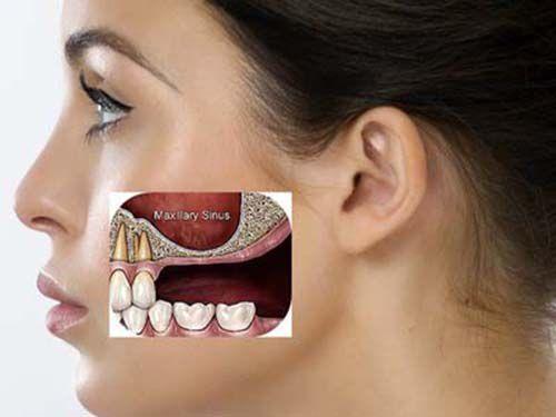 Có nên trồng răng giả ngay sau khi mới nhổ răng? - Ảnh 2