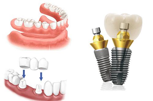 Có nên trồng răng giả ngay sau khi mới nhổ răng? - Ảnh 3