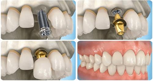 Có nên trồng răng giả ngay sau khi mới nhổ răng? - Ảnh 4