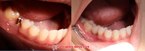 Có nên trồng răng giả ngay sau khi mới nhổ răng? - Ảnh 5
