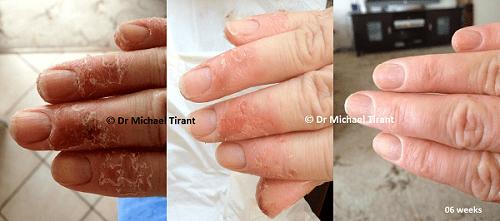 Bệnh á sừng và giải pháp điều trị hiệu quả, an toàn - Ảnh 1