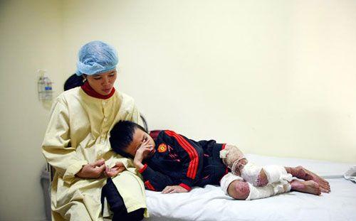 Bé trai 7 tuổi bị cha dùng rơm đốt vì tự ý ăn mì tôm của bà - Ảnh 7