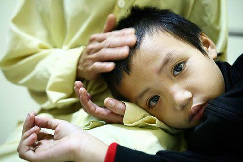 Bé trai 7 tuổi bị cha dùng rơm đốt vì tự ý ăn mì tôm của bà - Ảnh 6