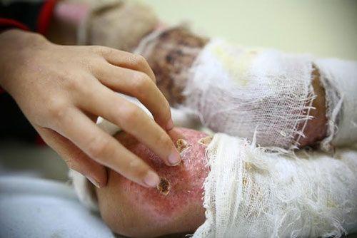Bé trai 7 tuổi bị cha dùng rơm đốt vì tự ý ăn mì tôm của bà - Ảnh 5