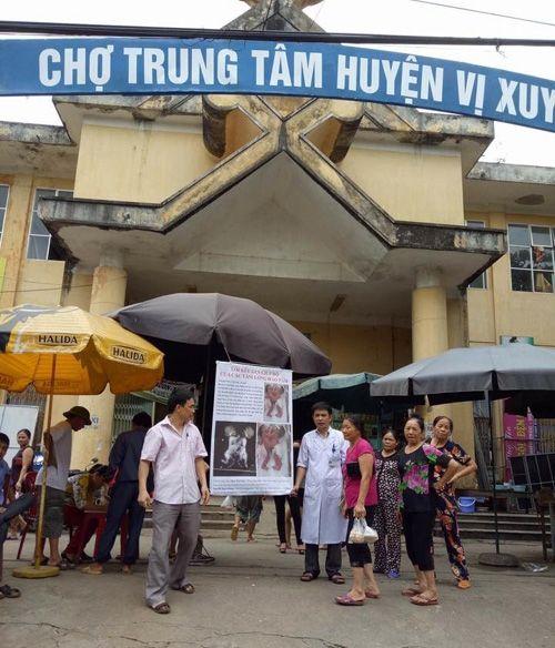 Hà Giang: Bác sỹ ra chợ kêu gọi ủng hộ tiền cứu cặp song sinh dính liền - Ảnh 1