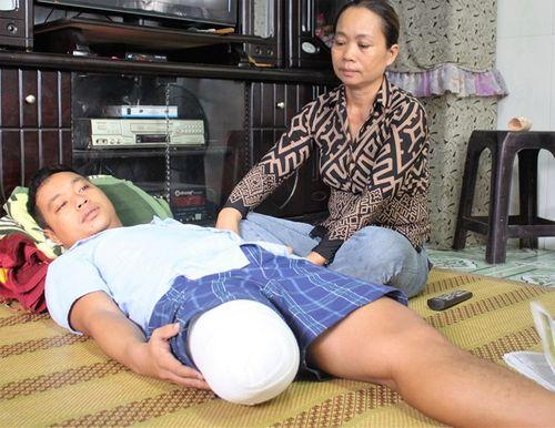 Bác sĩ chẩn đoán nhầm, bệnh nhân phải cưa chân vì hoại tử - Ảnh 1