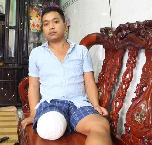 Vụ bệnh nhân phải cưa chân vì hoại tử: Bệnh viện thừa nhận sai sót - Ảnh 2