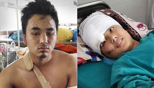 Động đất Nepal: Rơi từ độ cao 60m, cặp tình nhân sống sót kỳ diệu - Ảnh 1
