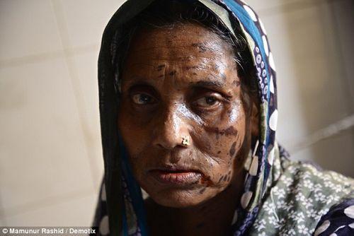 Thương tâm hai mẹ con bị tạt axit khiến gương mặt biến dạng - Ảnh 2