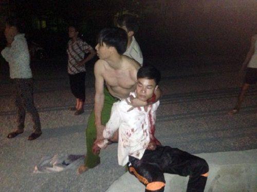 Lào Cai: Chồng đâm vợ tử vong giữa đường rồi tự tử - Ảnh 1