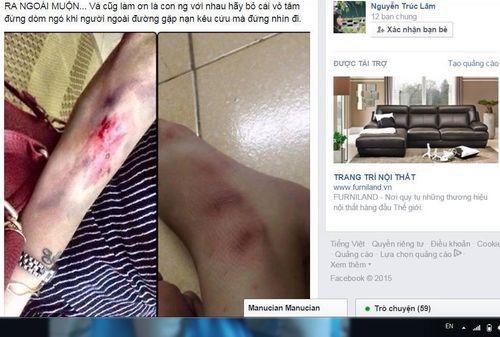 Sự thật chuyện bạn nữ bị 2 thanh niên cướp đồ, đánh đập giữa đêm - Ảnh 1