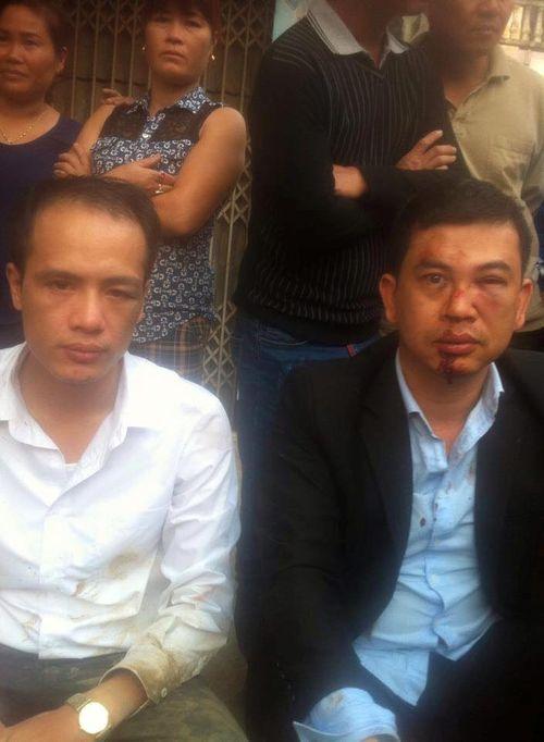 Giám đốc Công an Hà Nội chỉ đạo điều tra  vụ 2 LS bị đánh - Ảnh 1
