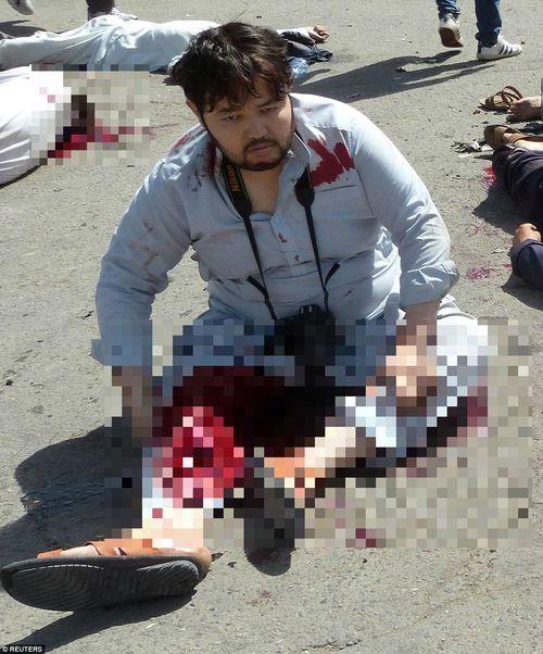 Hình ảnh khủng khiếp từ vụ đánh bom chết chóc ở Afghanistan - Ảnh 7