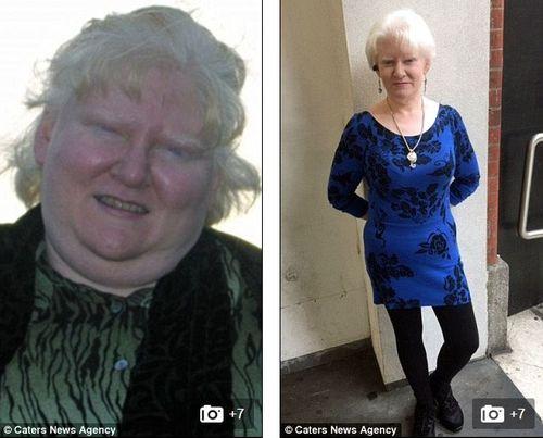 Bà mẹ giảm được gần 100kg nhờ tập thái cực quyền và buộc dạ dày - Ảnh 1