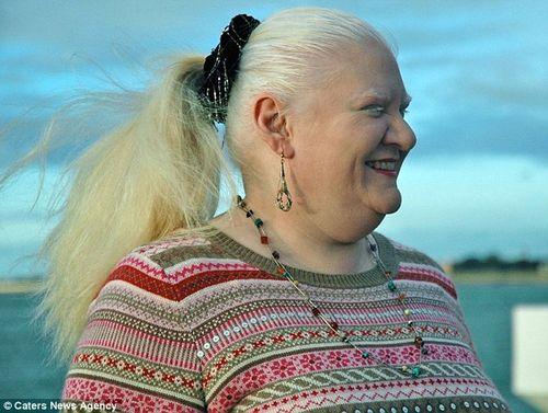 Bà mẹ giảm được gần 100kg nhờ tập thái cực quyền và buộc dạ dày - Ảnh 2