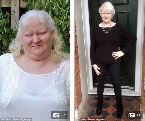 Bà mẹ giảm được gần 100kg nhờ tập thái cực quyền và buộc dạ dày - Ảnh 3