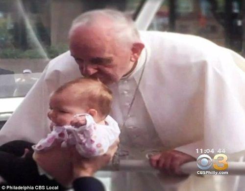 Kỳ lạ nụ hôn của Giáo hoàng làm teo khối u não của em bé - Ảnh 1