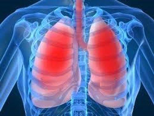 Rùng mình biến chứng đáng sợ của bệnh sốt xuất huyết - Ảnh 3