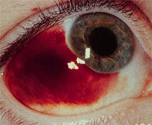 Rùng mình biến chứng đáng sợ của bệnh sốt xuất huyết - Ảnh 4