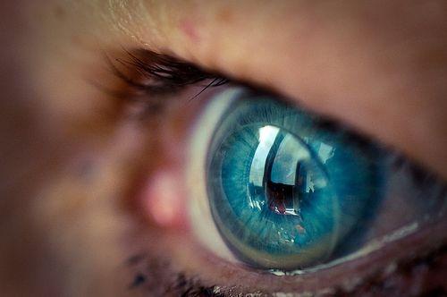 Đeo kính áp tròng giá rẻ, thanh niên bị mù một mắt - Ảnh 3