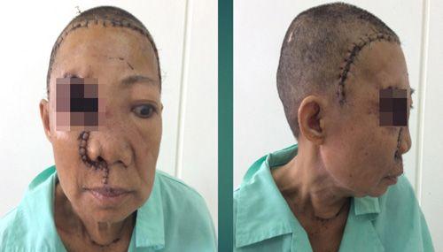 Xót xa bà lão bị 'mọc thêm đầu' trên mặt - Ảnh 2