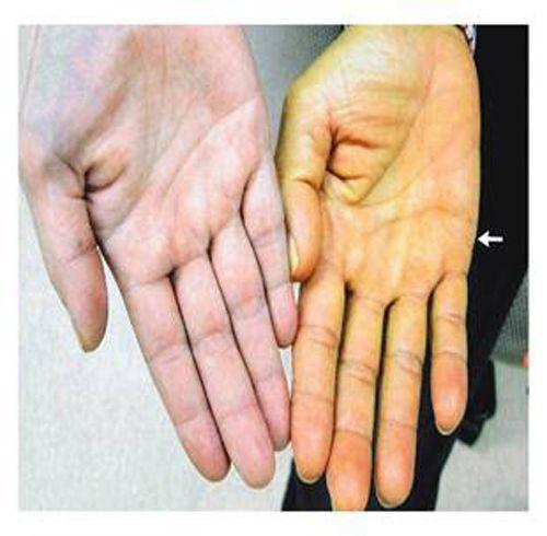 Các dấu hiệu cảnh báo sớm bệnh ung thư gan - Ảnh 2
