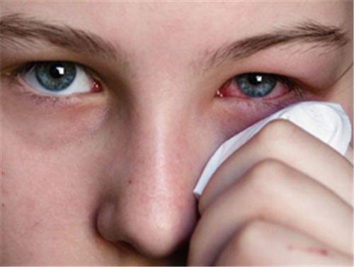 Cách phòng ngừa và xử trí khi bị bệnh đau mắt đỏ - Ảnh 1