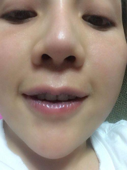"""""""Lạnh người"""" cô gái cắt bớt môi để sở hữu đôi môi nhỏ hơn - Ảnh 4"""