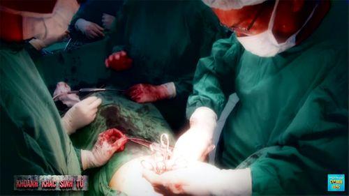 Cuộc đại phẫu thuật thoát khỏi cái chết của chàng trai bị mất nửa người - Ảnh 2