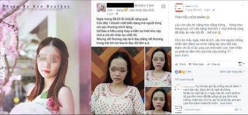 """Ngày 8/3: Vợ hotgirl mang bầu mặt mũi """"bầm dập"""" vì bị chồng đánh - Ảnh 1"""