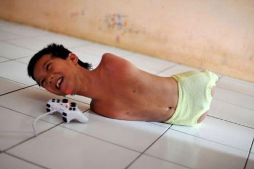 Cảm động nụ cười của cậu bé không tay, không chân - Ảnh 1
