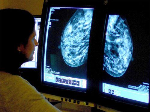 Phát hiện đột phá về gen gây ung thư vú - Ảnh 1