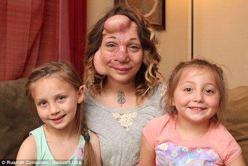 Phẫu thuật loại bỏ khối u chiếm gần hết mặt của người phụ nữ - Ảnh 1